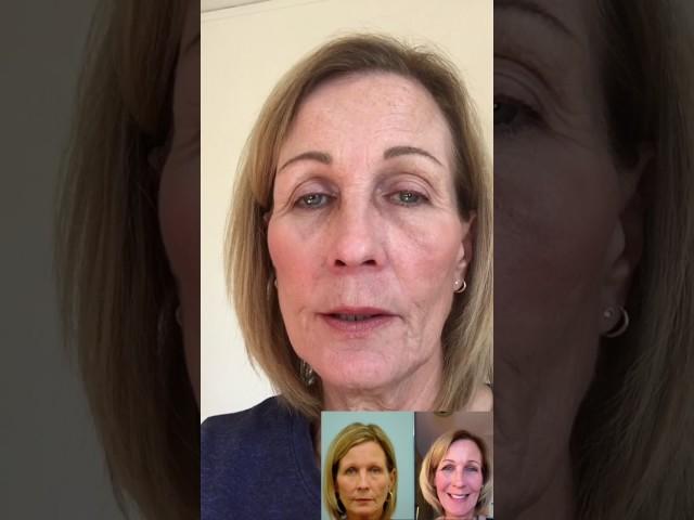 Mary's Eyebrow Hair Transplant Testimonial & Photos
