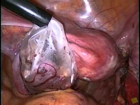 recurring ovarian cysts