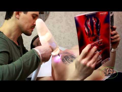 Процесс удаления татуировки в Краснодаре в студии Синяя Борода