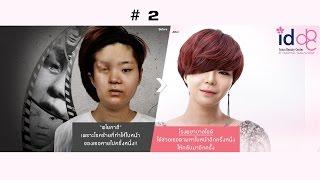 Let Me In โรงพยาบาลไอดี ศัลยกรรมเกาหลี : สาวหน้าครึ่งเสี้ยว ! ตอนที่2