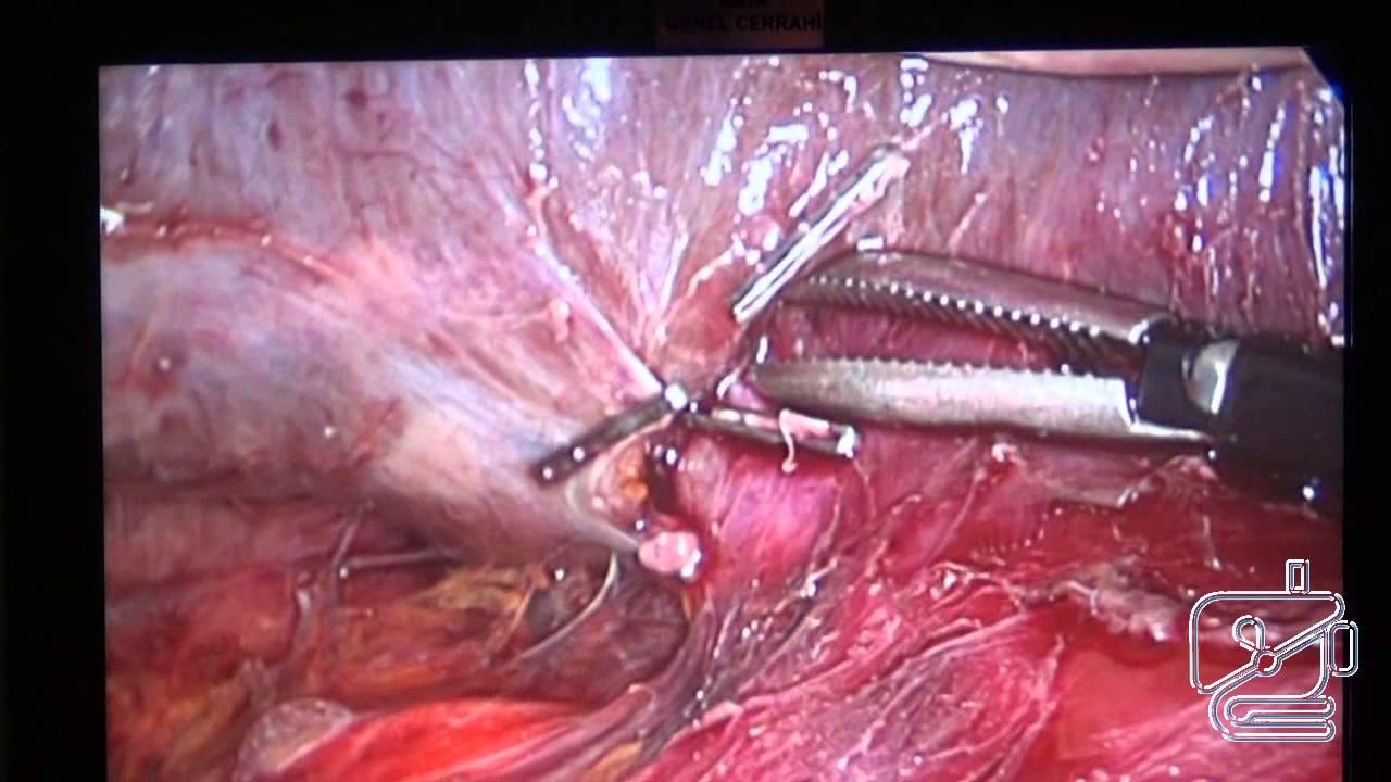 Karaciğer arka kısmında yerleşmiş kitle için laparoskopi yardımlı karaciğer rezeksiyonu