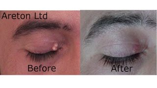 Benign eyelid skin lesion removal for aesthetic purposes using the BeautyTeck, normal speed.