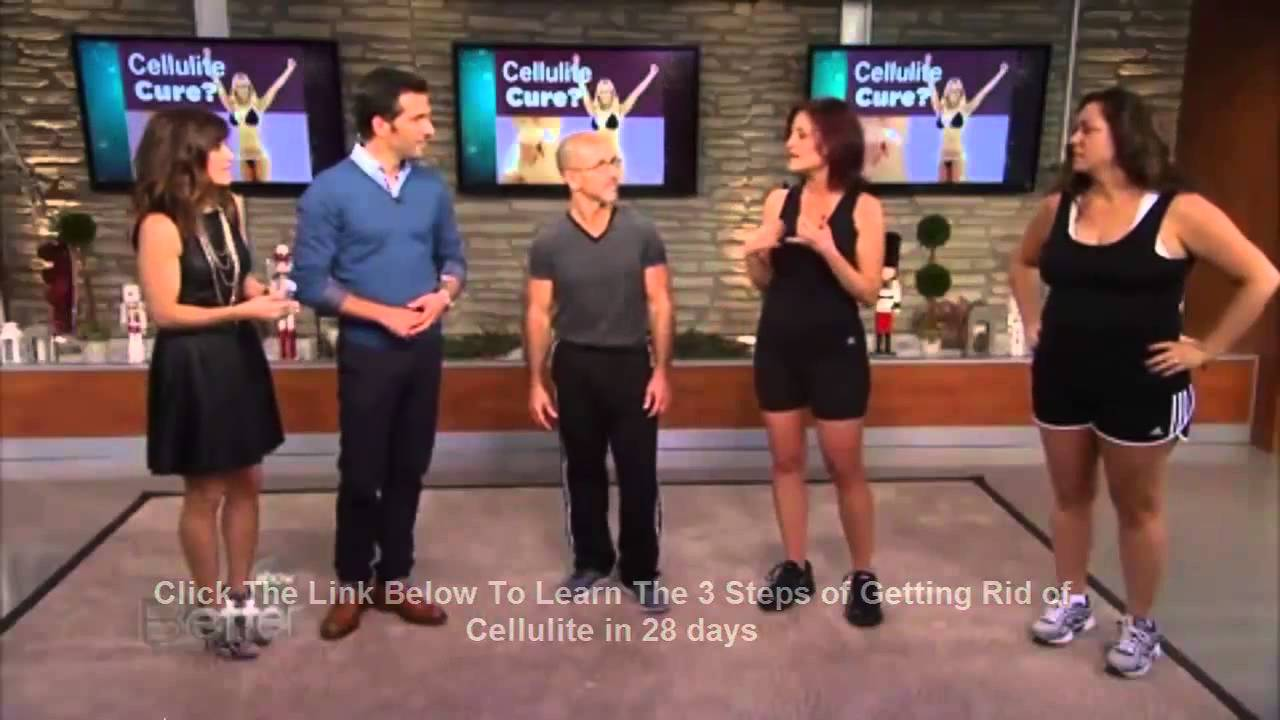 how to get rid of cellulite without exercise