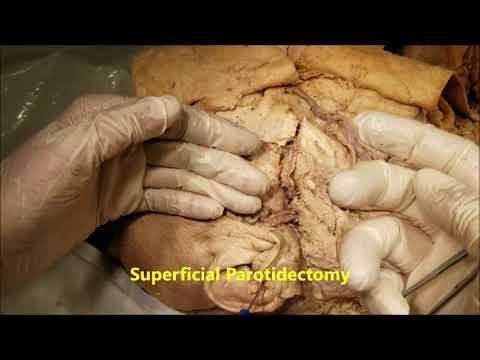 Parotid Gland – Relations Internal Structures and Surgical Anatomy – Sanjoy Sanyal