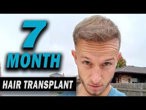 FUE Hair Transplant 7 Months (post op) Istanbul,Turkey