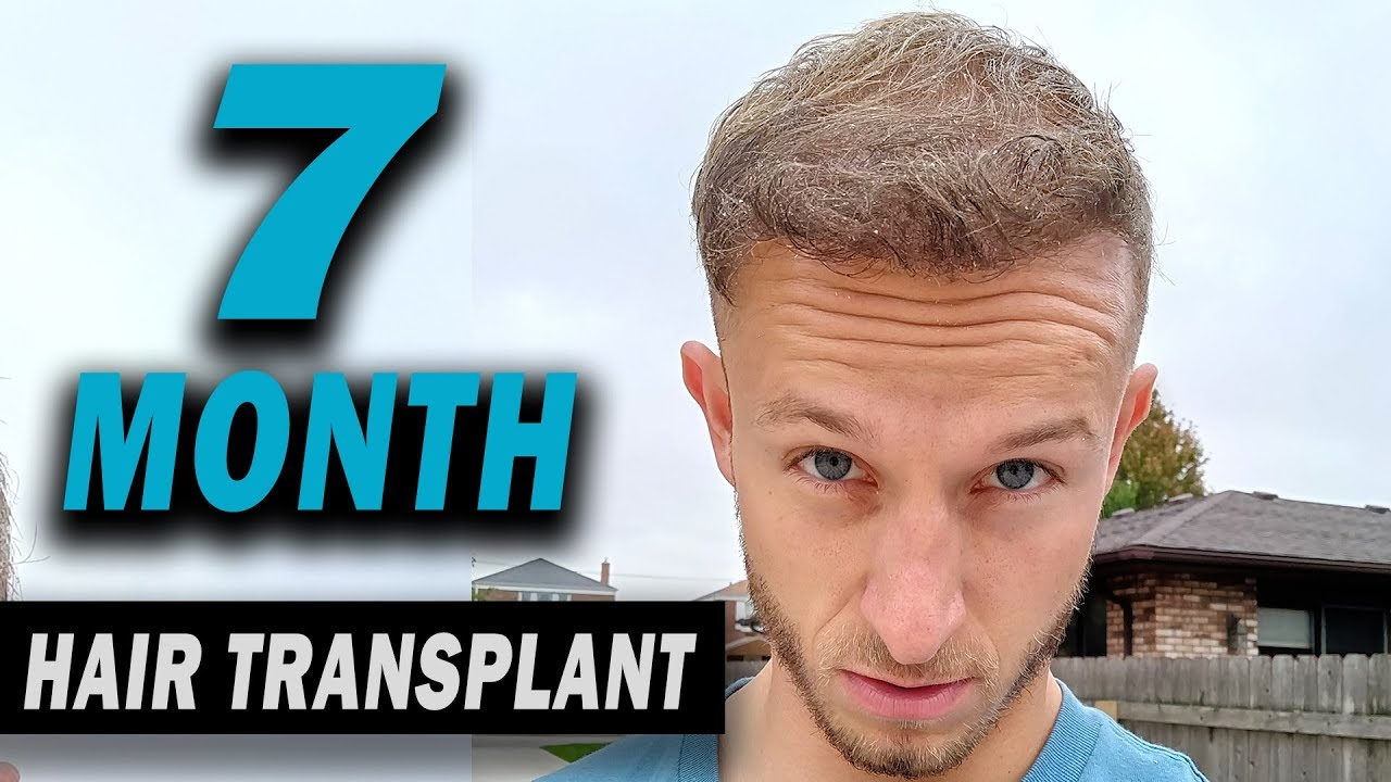 Fue Hair Transplant 7 Months Post Op Istanbul Turkey Youtube