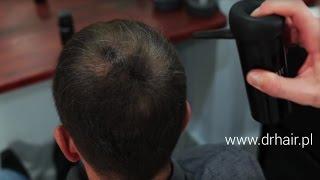 Zagęszczanie włosów - Profesjonalny Kosmetyk - Efekt już po 30 sekundach!