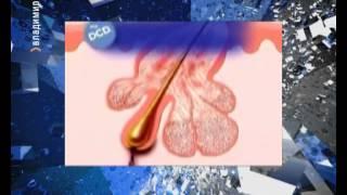 видео дерматология