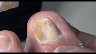 Super infected nail treatment without pain
