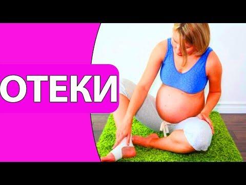 Как лечить отеки при беременности / Как распознать отеки при беременности