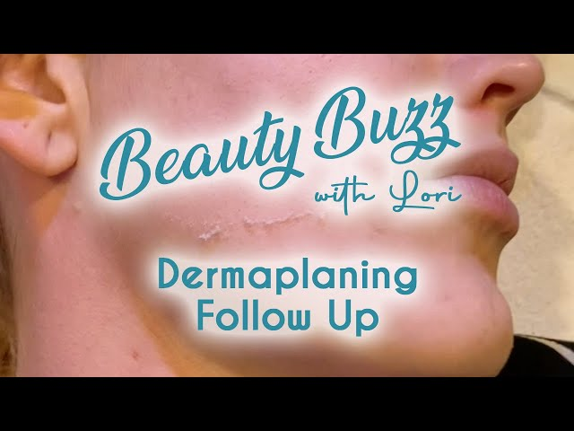 Beauty Buzz with Lori: Dermaplaning Follow Up