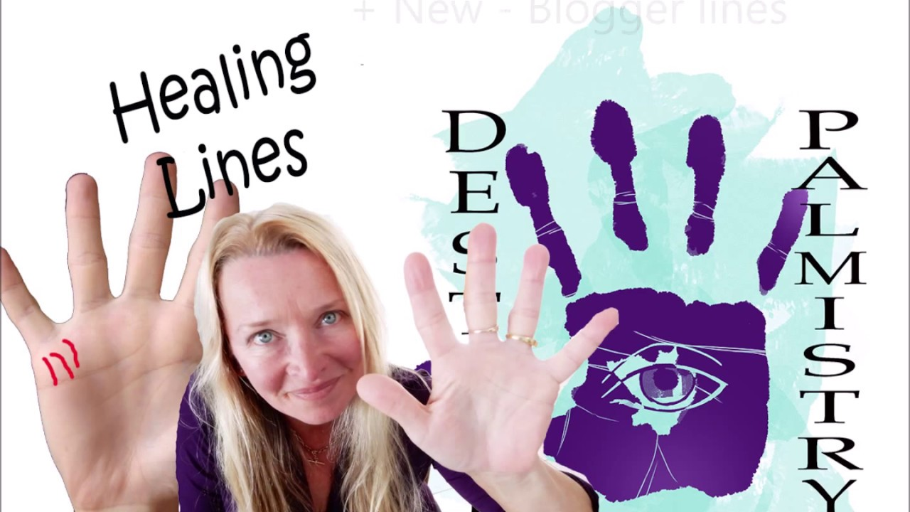 Healing lines in palmistry – Medical stigmata meaning