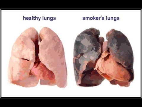 The effects of smoking on the human body