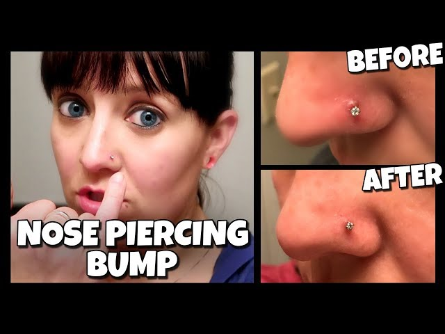 How To Get Rid Of A Nose Piercing Bump Fast Keloid How To