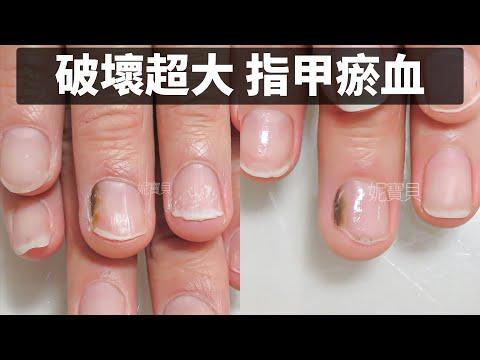 指甲瘀青瘀血|熱愛拳擊 破壞大的矯正案例|強烈運動傷害的手指|途中還不幸發霉