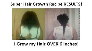 NEW Super Hair Growth Recipe - Emu Oil & Castor Oil