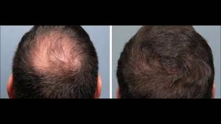 How To Regrow Loss Hair By Onion - How To Use Nizoral For Hair Loss