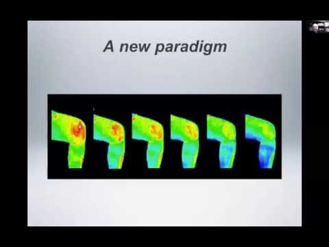 The Value of Thermography, with radiologists Dr. John D. Bartone and Dr. Thomas Hudson
