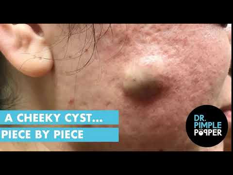 A Cheeky Cyst... Piece by Piece