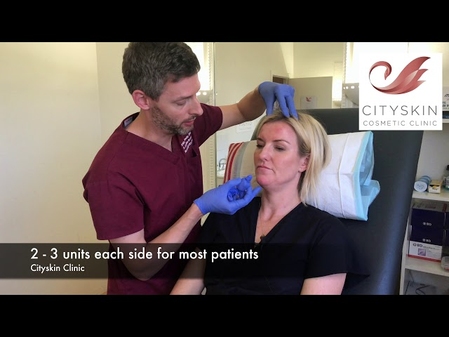 How to treat a downturning mouth / DAO anti-wrinkle treatment