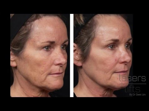 How long does it take to heal from CO2 laser resurfacing? (Fractional)