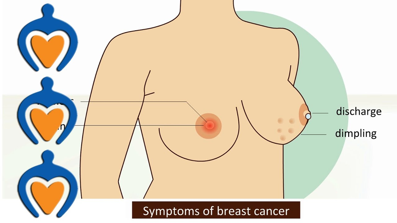 Breast Cancer - Symptoms And Treatment - Youtube-4631