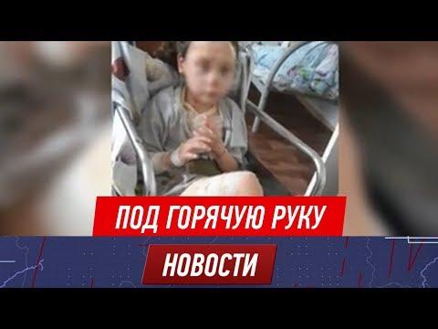 Няня в детсаду опрокинула на 6-летнего ребёнка кастрюлю с горячим обедом