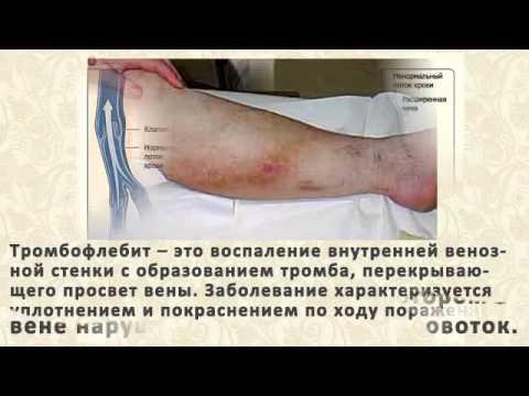 Диета и питание при варикозе вен на ногах
