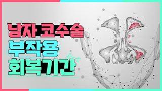 [압구정 정병훈성형외과] 남자코수술 후 부작용ㆍ회복 기…