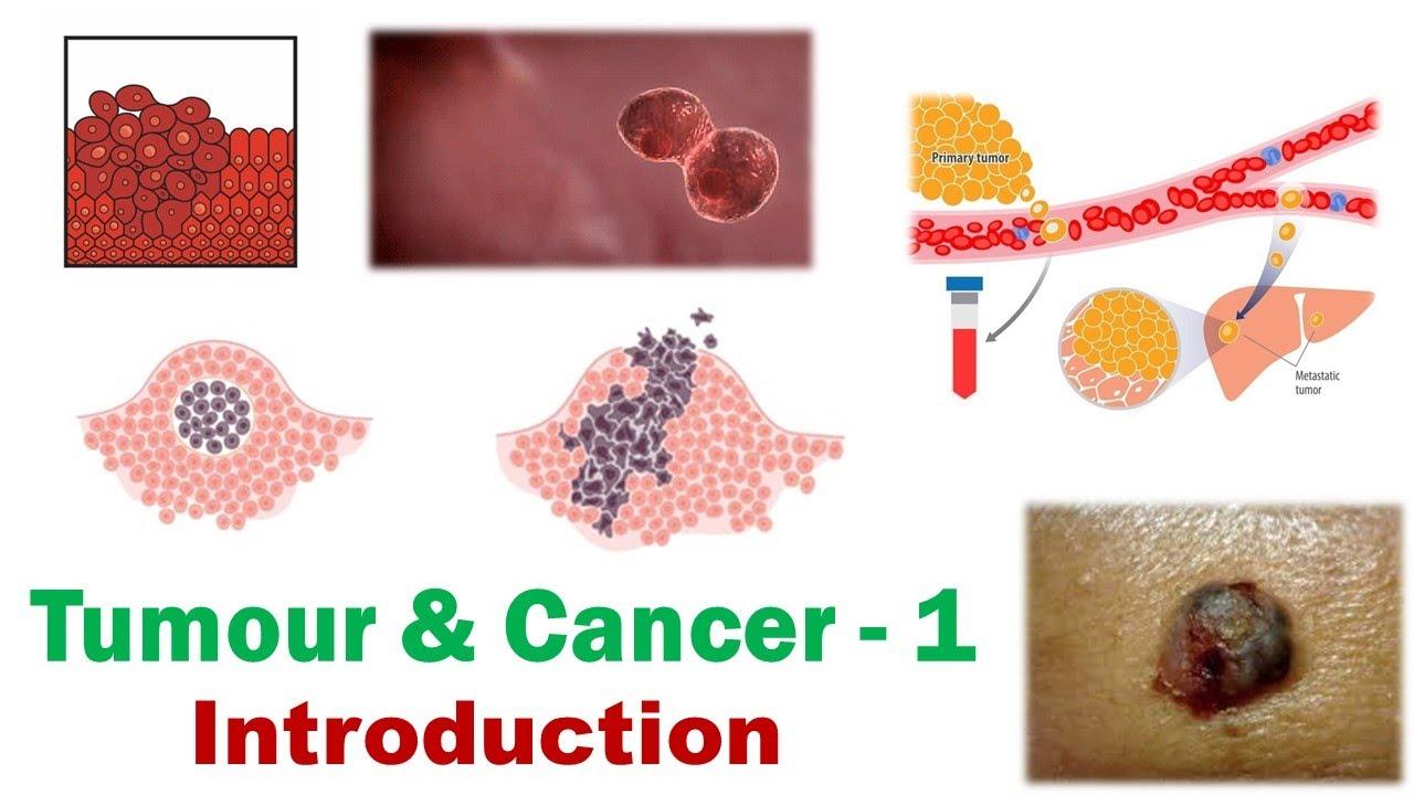 cancer neoplasia benigna)