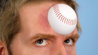 Baseball In Head!