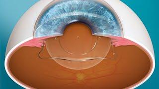 Warum ist Augenlasern bekannter als die ICL?