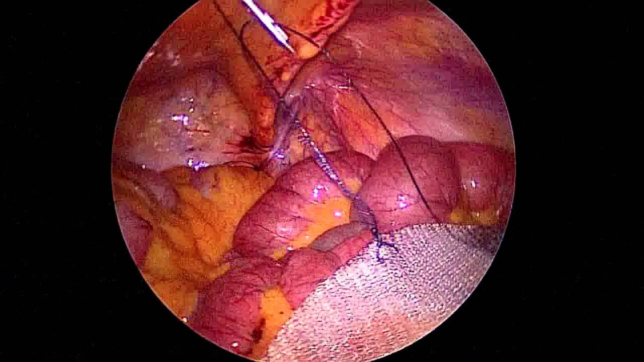 Ventral Hernia Repair Using Ventralight St Youtube