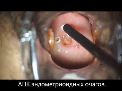 Эндометриоз шейки матки и цервикального канала.АПК.