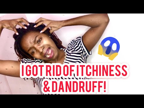 how-to-clean-a-dry,-itchy,dandruff-scalp||dreadlocs/braids||part-2