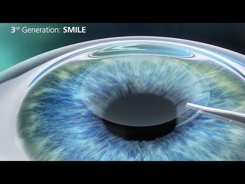 relex-smile-procedure