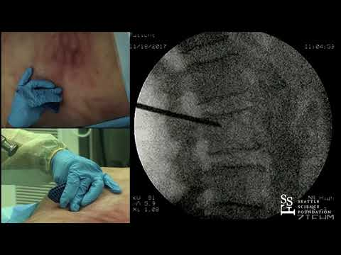 Live Demonstration: Vertebral Augmentation Case - Douglas P. Beall, M.D.
