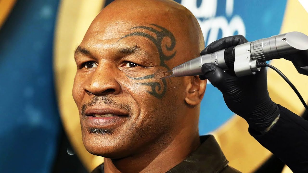 Tyson Face Tatoo: Removing MIKE TYSON'S Face Tattoo