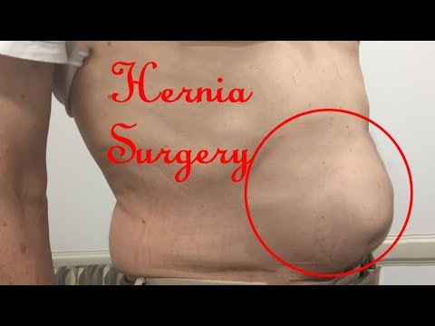 Laparoscopic Hernia Repair Surgery Unedited Video | Hernia surgery tips and  tricks