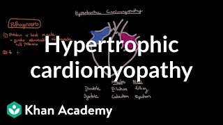 Hypertrophic cardiomyopathy: Pathophysiology and diagnosis | NCLEX-RN | Khan Academy thumbnail