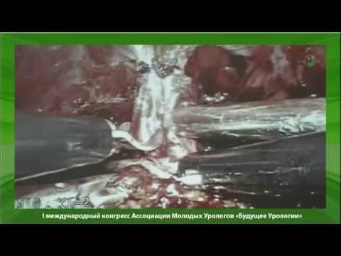 лапароскопическая радикальная простатэктомия при локализованном раке простаты