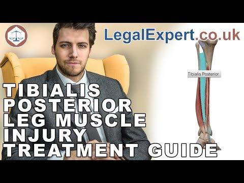Tibialis Posterior Leg Muscle Injury Treatment Guide ( 2019 ) UK