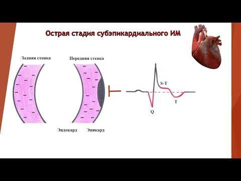 """ЭКГ диагностика инфаркта миокарда""Саркулова С.М, Байдурин С.А, Бекенова Ф.К."