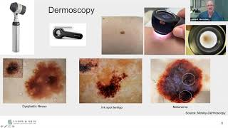 Actinic keratosis removal, treatments, and prevention| Dr Dray.