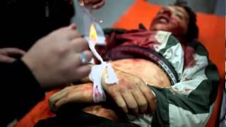 Пытки детей сирийскими военными