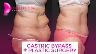Gastric ByPass + Plastic Surgery (Spanish)