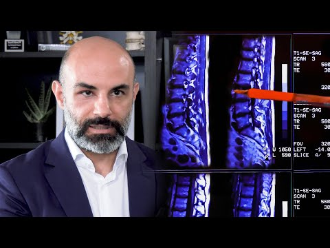 the-facts-about-degenerative-disc-disease-|-the-spine-pro