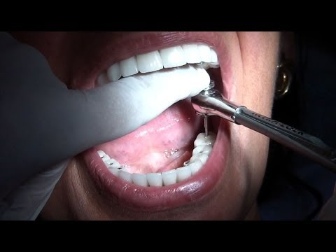 FULL MOUTH REHABILITATION WITH IMPLANT