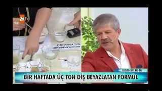 Ahmet Maranki Bir Haftada Diş Beyazlatma Yöntemi Zahide Yetiş