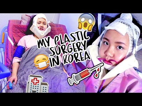 korean plastic surgery | Tumblr